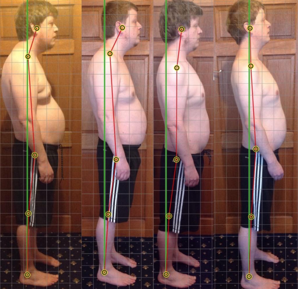 Correcting American Posture