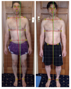 lower-back-disc-injury-posture-screen