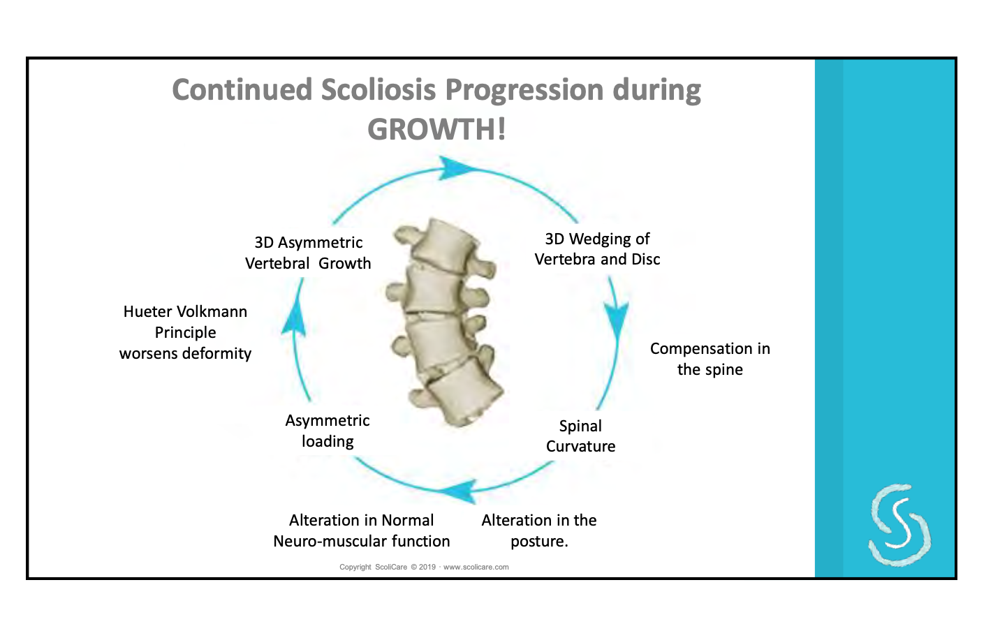 Scoliosis Progression