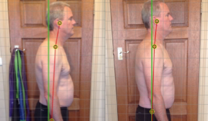 Case History: Chronic Back Pain and Forward Head Posture