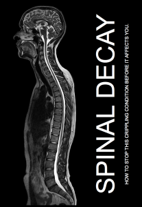Spinal Decay