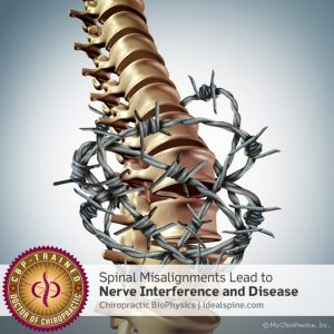 Spinal Misalignents Leand To Nerve Interference