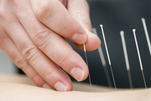Acupuncture Cure Chronic Pain